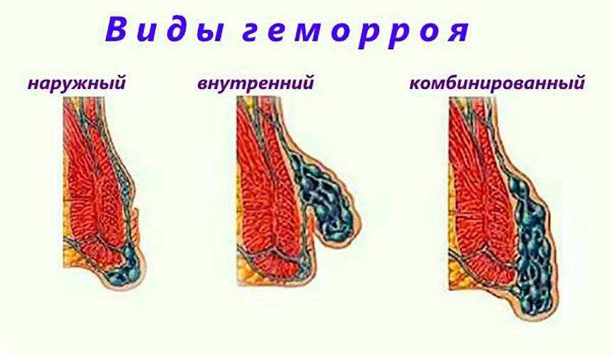 геморрой комбинированный лечение