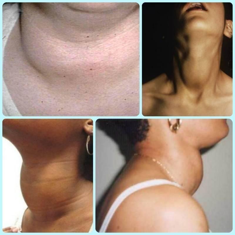 чешется шея в районе щитовидной железы