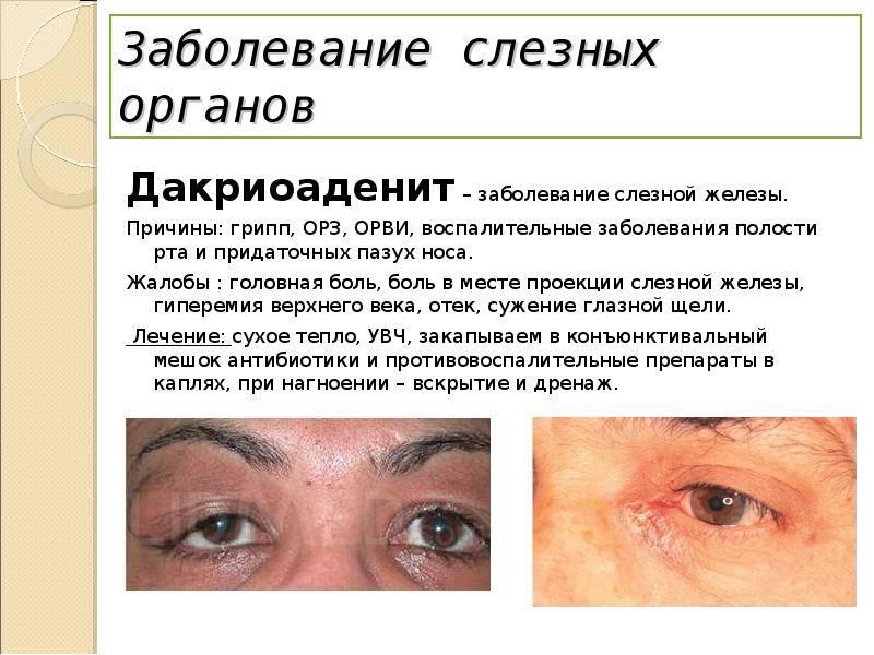 Воспаление слезной железы симптомы лечение