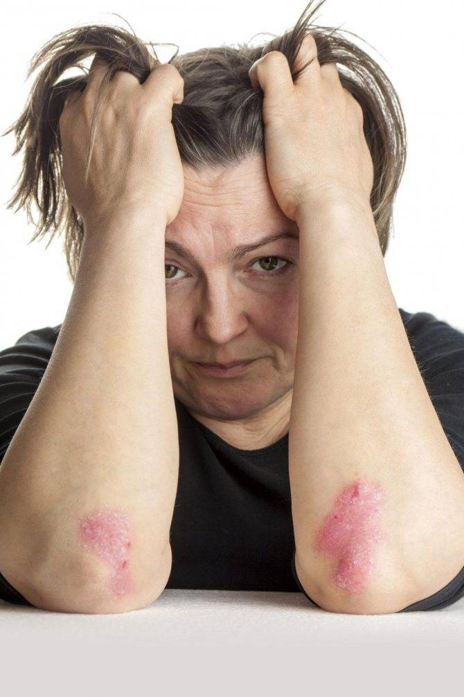 Лечение псориаза на интимных местах