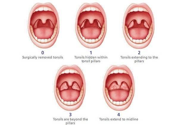 Лечение воспаления миндалин в горле и где расположены гланды у взрослых
