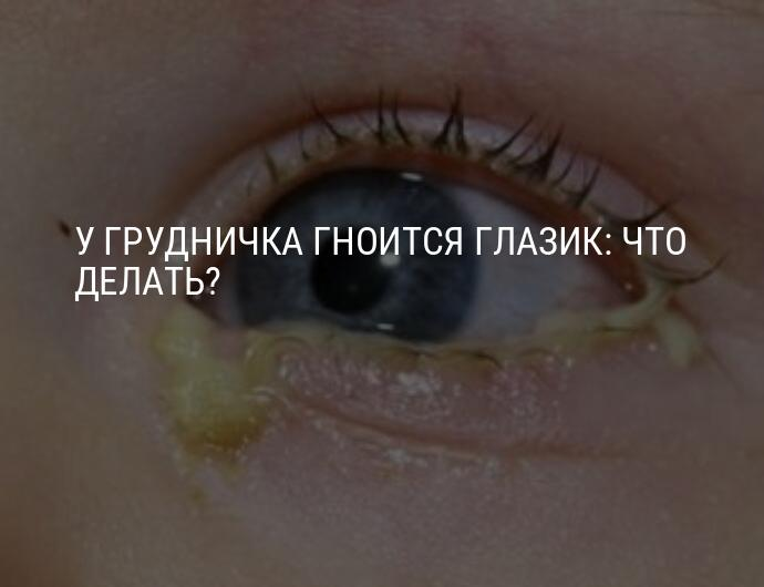 Закисают глаза у ребенка