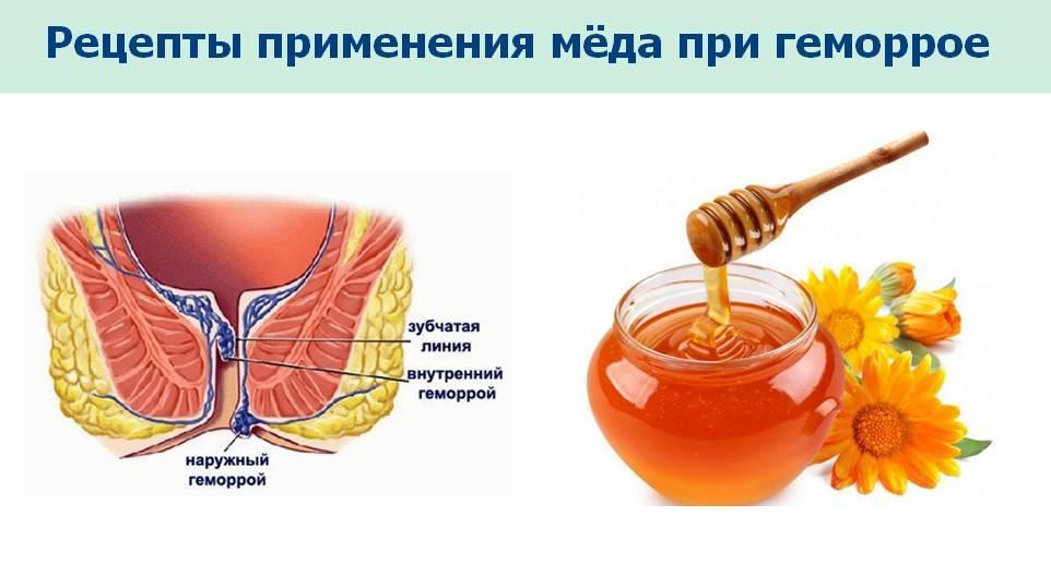 мед от геморроя рецепт