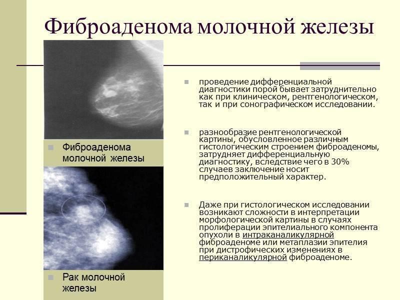 Опухоли молочной железы