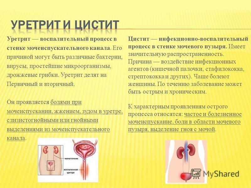 Цистит и уретрит у женщин