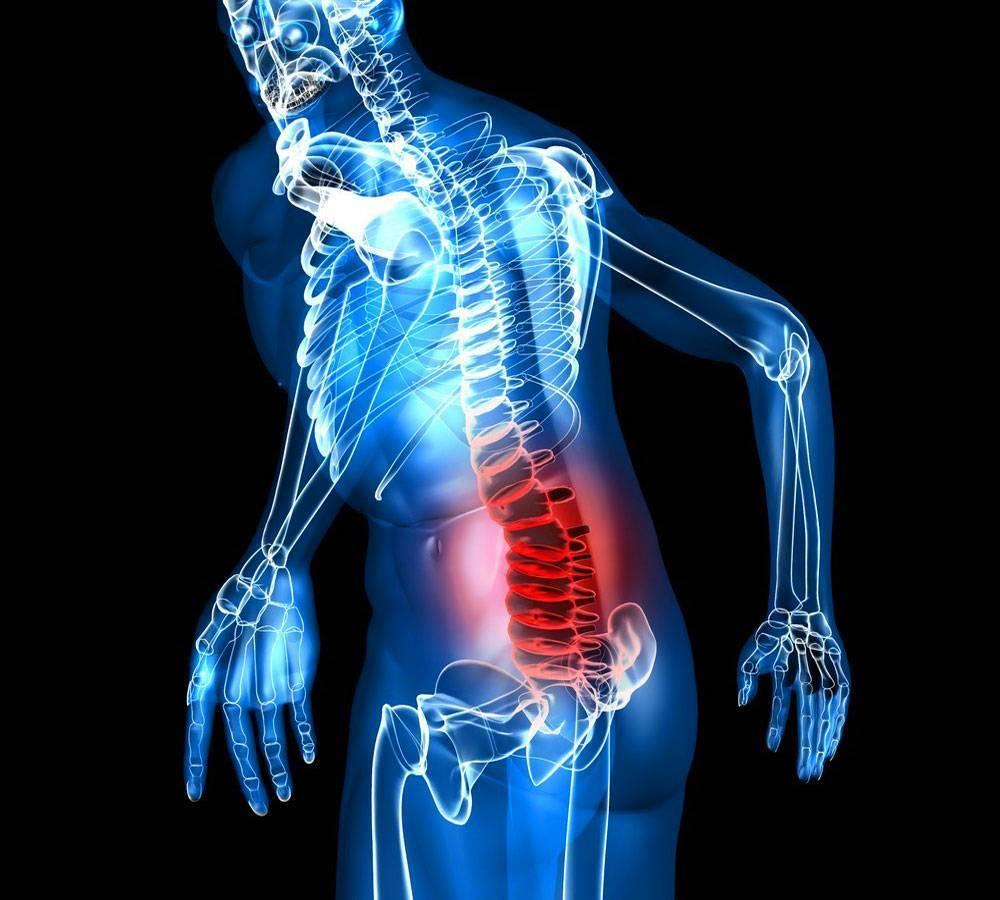 Мышечная невралгия. как вылечить мышечную невралгию и на какие симптомы обращать внимание. народные средства от невралгии