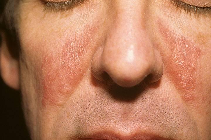 что такое себорейный дерматит