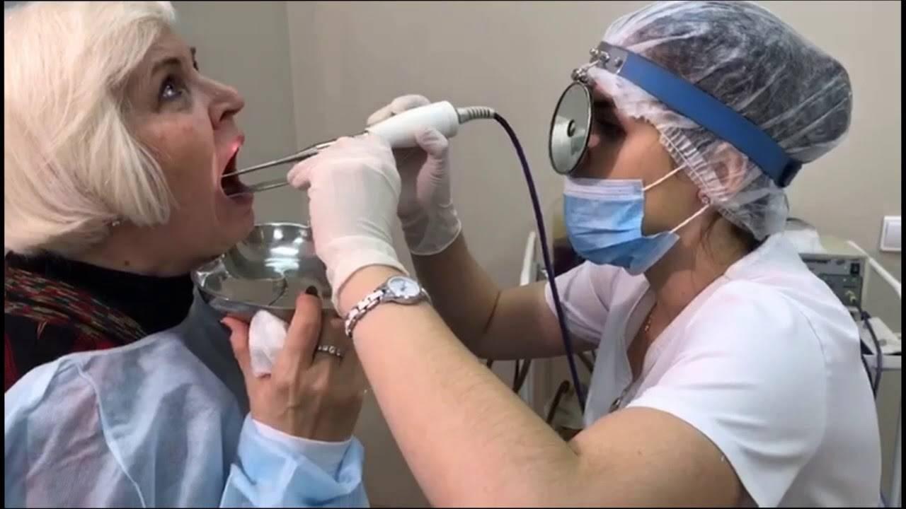 Методы промывания миндалин, показания и противопоказания для процедуры