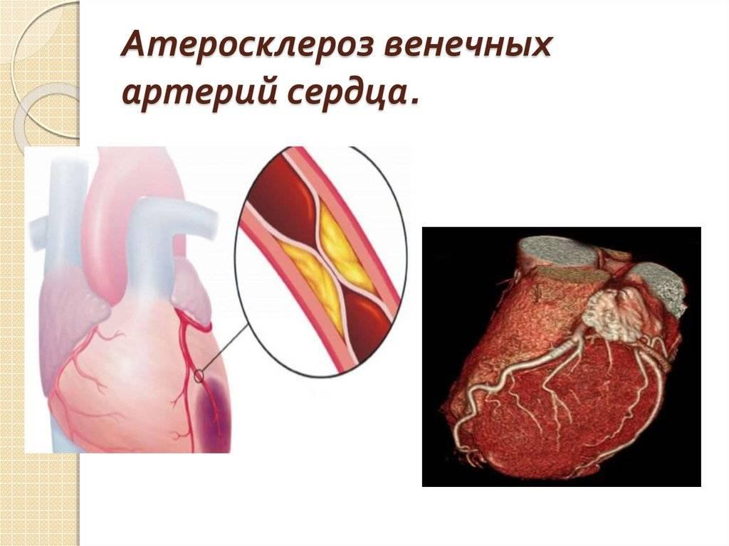 Что такое кардиосклероз атеросклероз аорты коронарных артерий