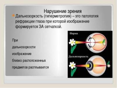 рефракция глаза у детей