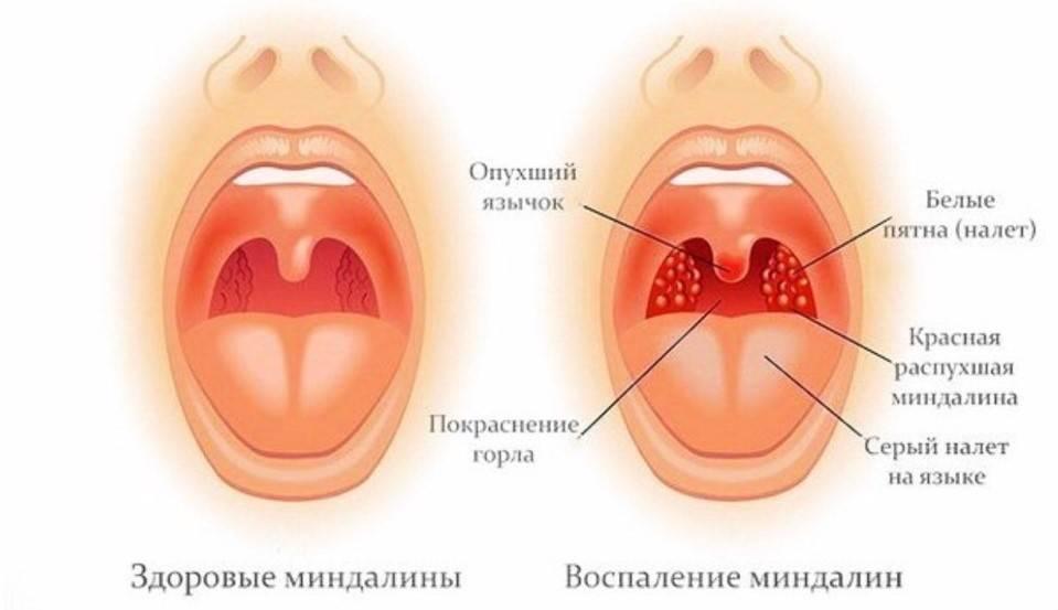 Начинает болеть горло: что делать, чтобы не разболеться в домашних условиях