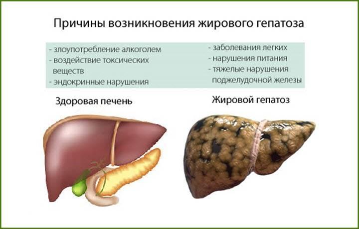 узи признаки жирового гепатоза печени
