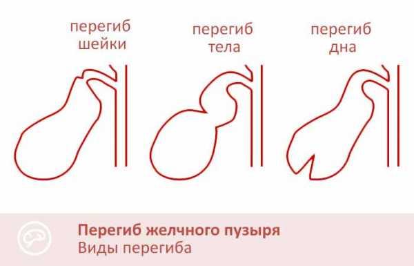 желчный пузырь изогнут в теле