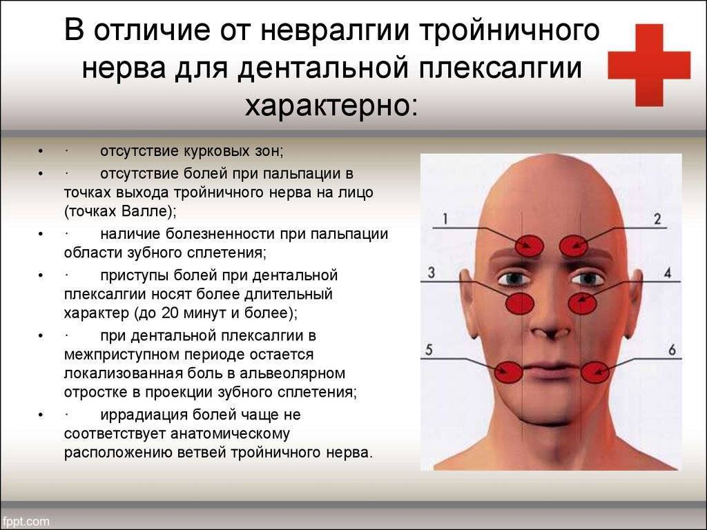 Тройничный нерв – что такое, где находится? воспаление тройничного нерва, невралгия, неврит – симптомы и лечение