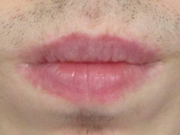 Контактный дерматит на губах фото