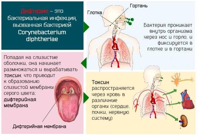дифтерия симптомы у взрослых