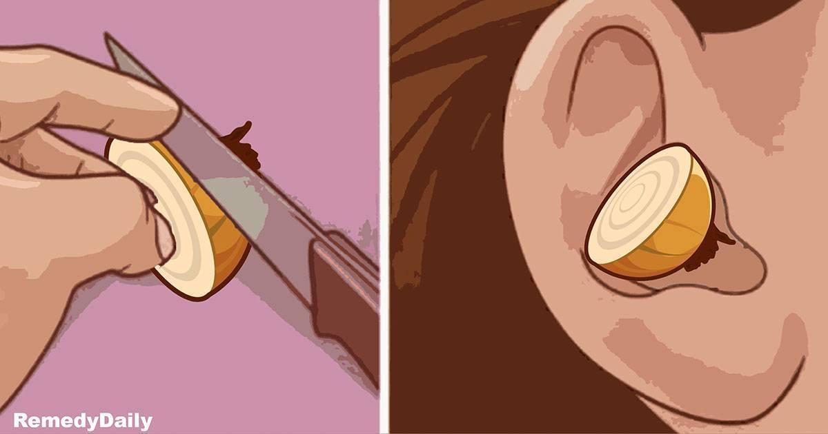лечение ушей луком