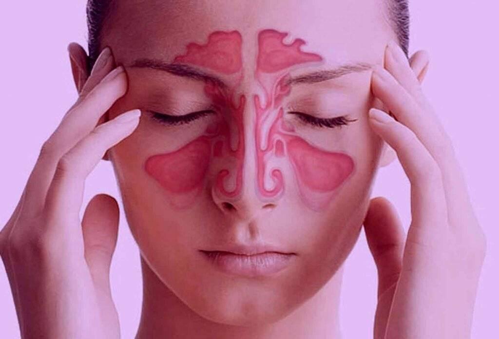 Признаки и лечение фронтита у взрослых