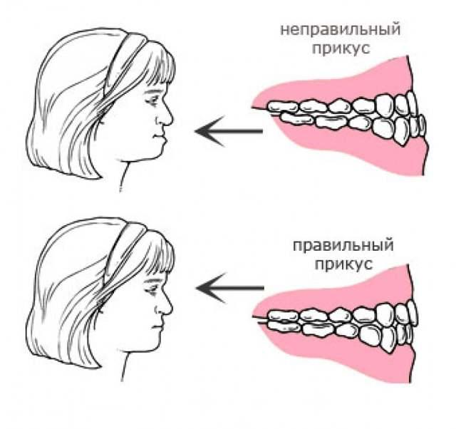 Правильный и неправильный прикус зубов у человека