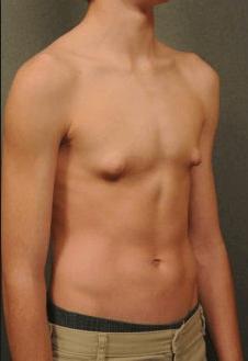 юношеская гинекомастия