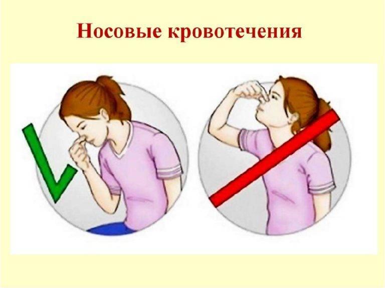 Кровь из носа у взрослых: причины, виды, первая помощь