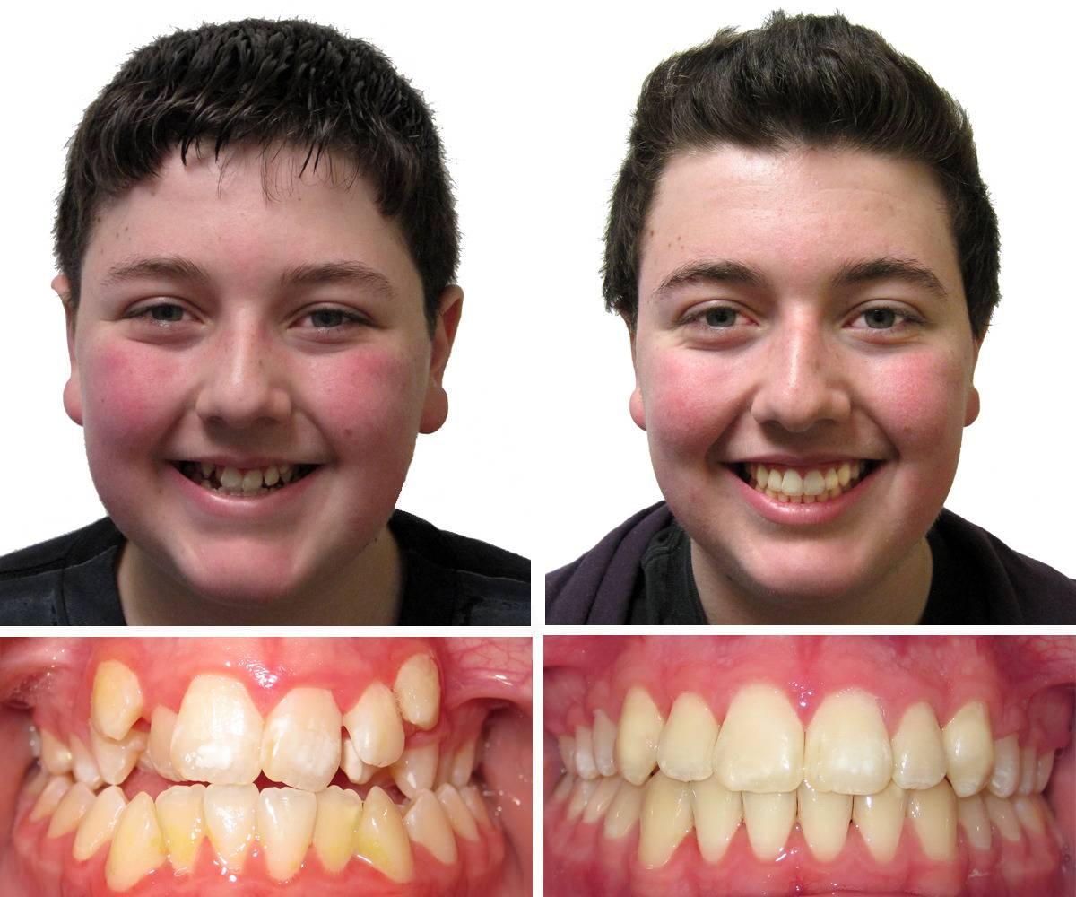 Капа после брекетов — сколько носить зубные конструкции
