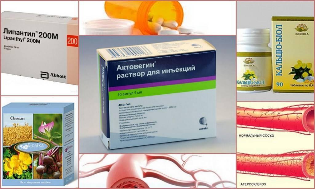 Первые тревожные звонки: признаки атеросклероза сосудов головного мозга
