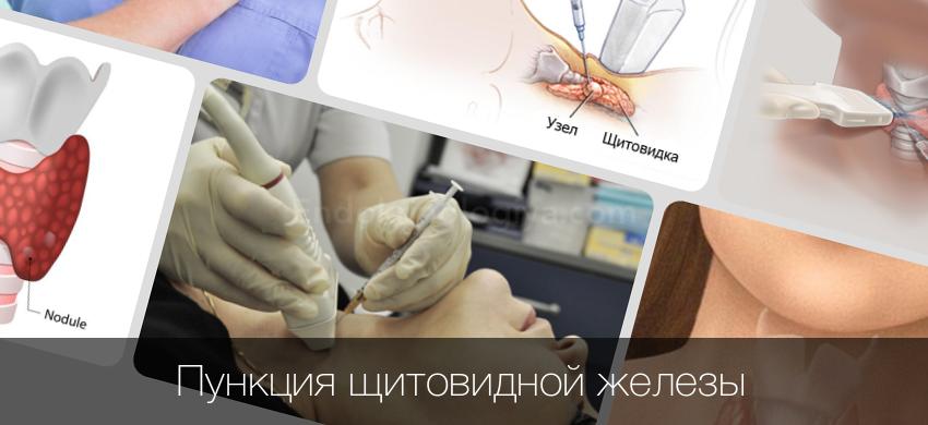 Пункция щитовидной железы, узлов: как проводят, показания, последствия