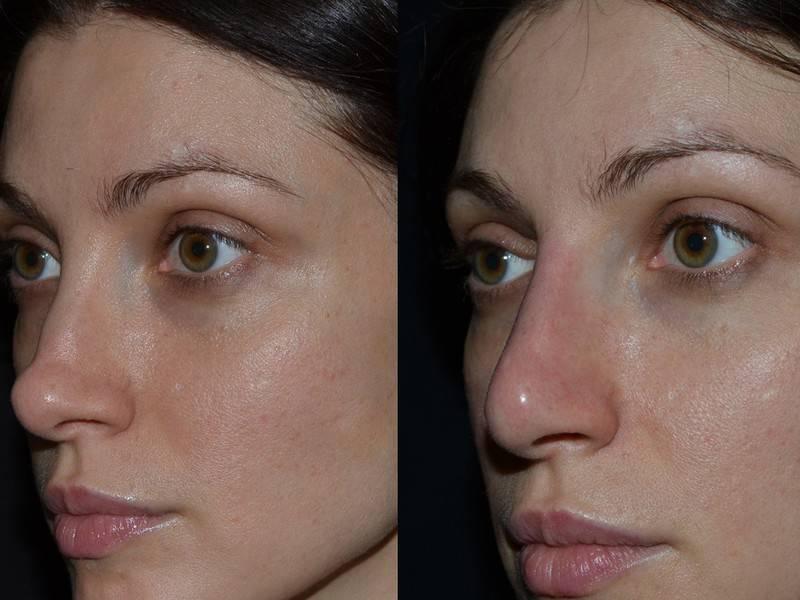 уменьшить кончик носа без операции