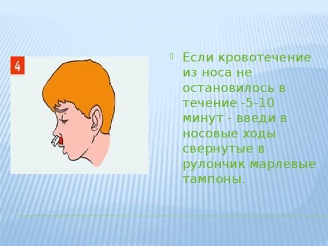 у ребенка часто идет кровь из носа что делать