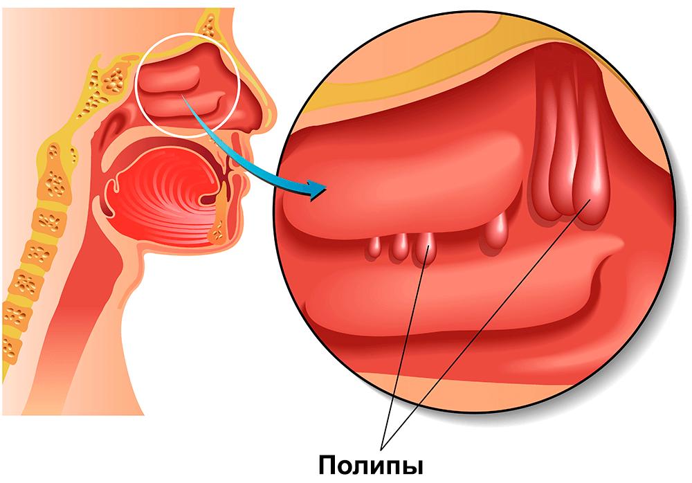 как удалить полипы в носу без операции