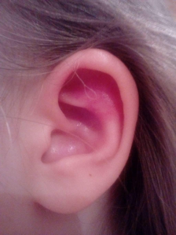 Особенности проявления и лечения герпеса в ушах