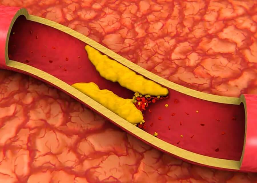 Показатели холестерина в зависимости от возраста