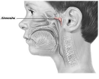 разросшиеся аденоиды симптомы