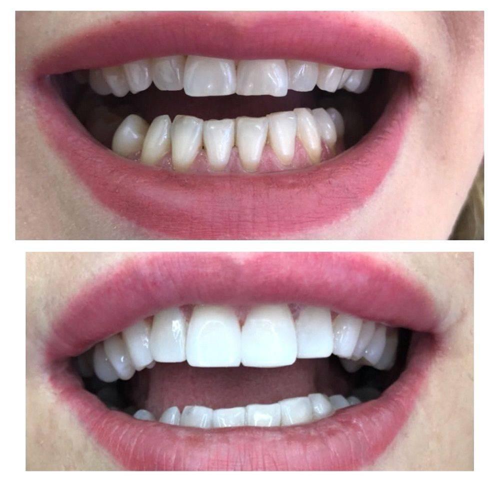Реставрация постоянных зубов