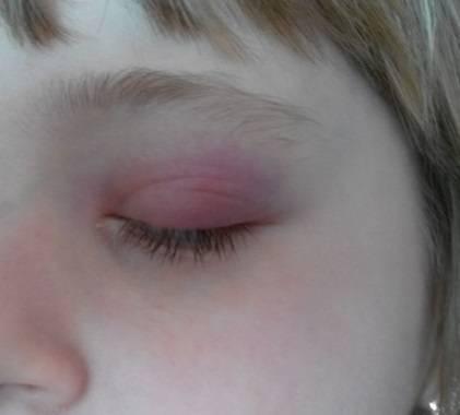 ячмень на глазу как лечить комаровский