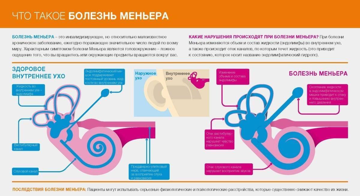 Болезнь меньера. причины, симптомы, диагностика и лечение патологии :: polismed.com