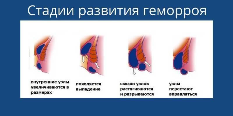 Геморроидальный тромбоз: виды и методы лечения