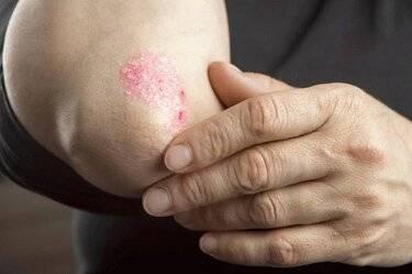 Первые признаки появления псориаза на локтях и способы лечения в домашних условиях