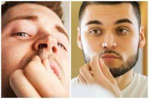 """Как избавиться от """"сливки"""" на носу? как быстро убрать """"сливу"""" с носа? ушиб носа: что делать и как лечить."""
