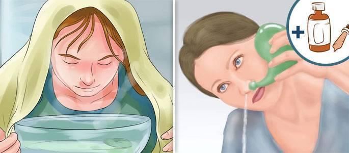 Можно в период беременности полоскать горло содой