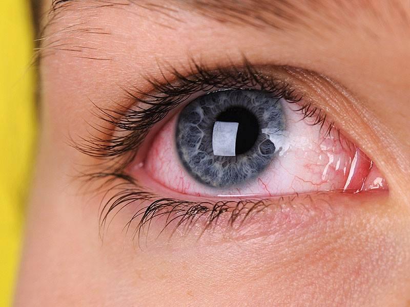 болят глаза в линзах