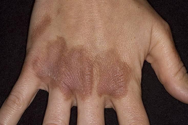 Как вылечить солнечный дерматит. как лечить солнечный дерматит: фото, медикаментозная терапия и действенные народные рецепты