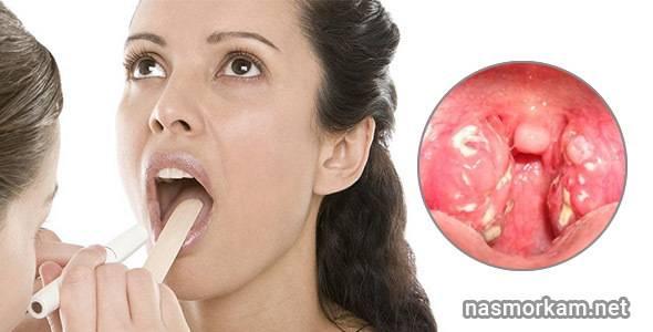 Неприятный запах из носоглотки: вопросы по отоларингологии