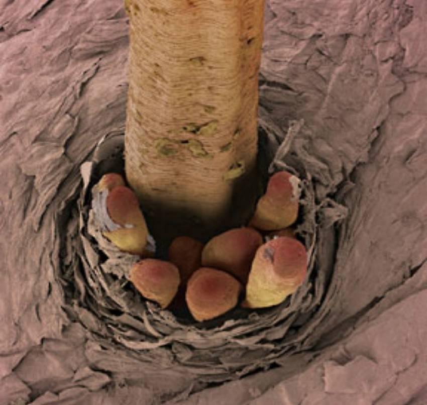 Ресничные клещи: симптомы и лечение