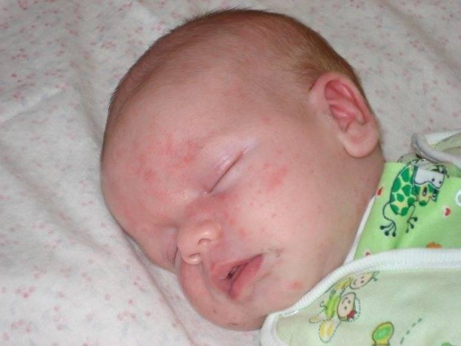 Золотистый стафилококк у грудничка (30 фото): симптомы, признаки и лечение новорожденных, чем опасен в кале, по мнению е. комаровского