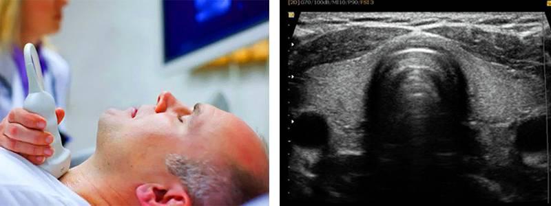 узи щитовидной железы узлы