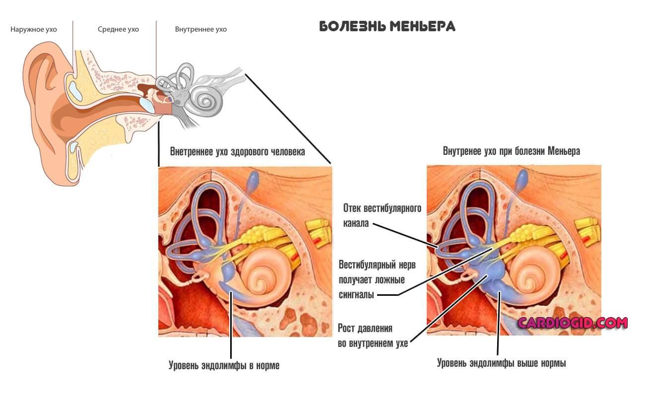 Заболевание внутреннего уха или болезнь меньера