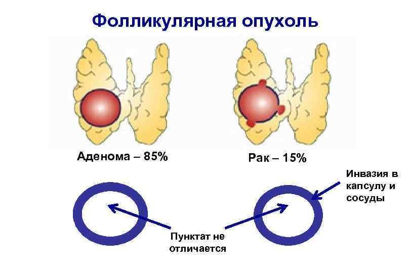 Фолликулярная аденома щитовидной железы: что это, симптомы
