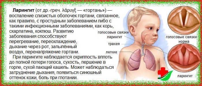 Ларингит у грудничка симптомы комаровский
